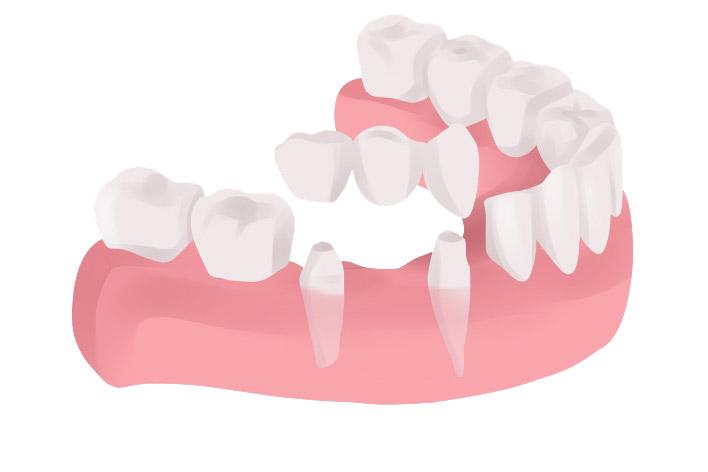 dental-bridge-diagram