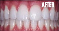 tooth_whitening_after