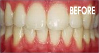 tooth_whitening_before